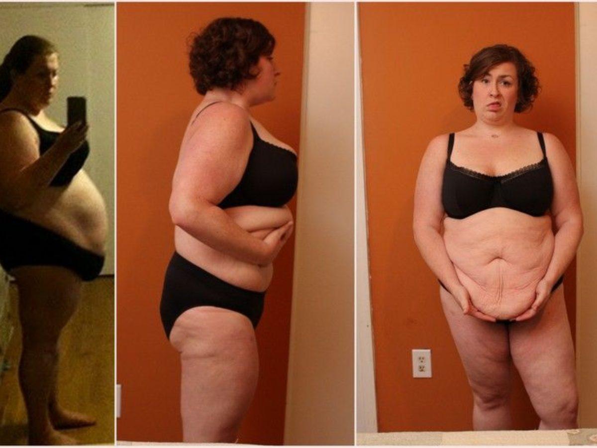 perdere peso dopo lifting