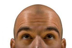 Calvizie, la cura innovativa: il trapianto di peli del petto