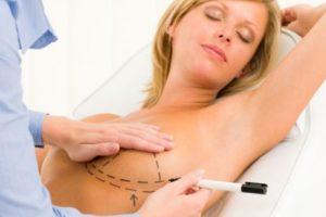 Chirurgia estetica viso e seno: pentiti?