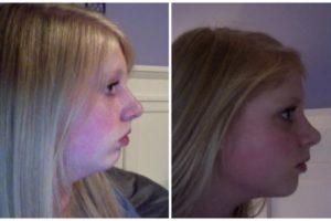Migliora il tuo profilo con la mentoplastica