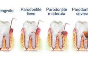 Parodontite: come si manifesta e come curarla