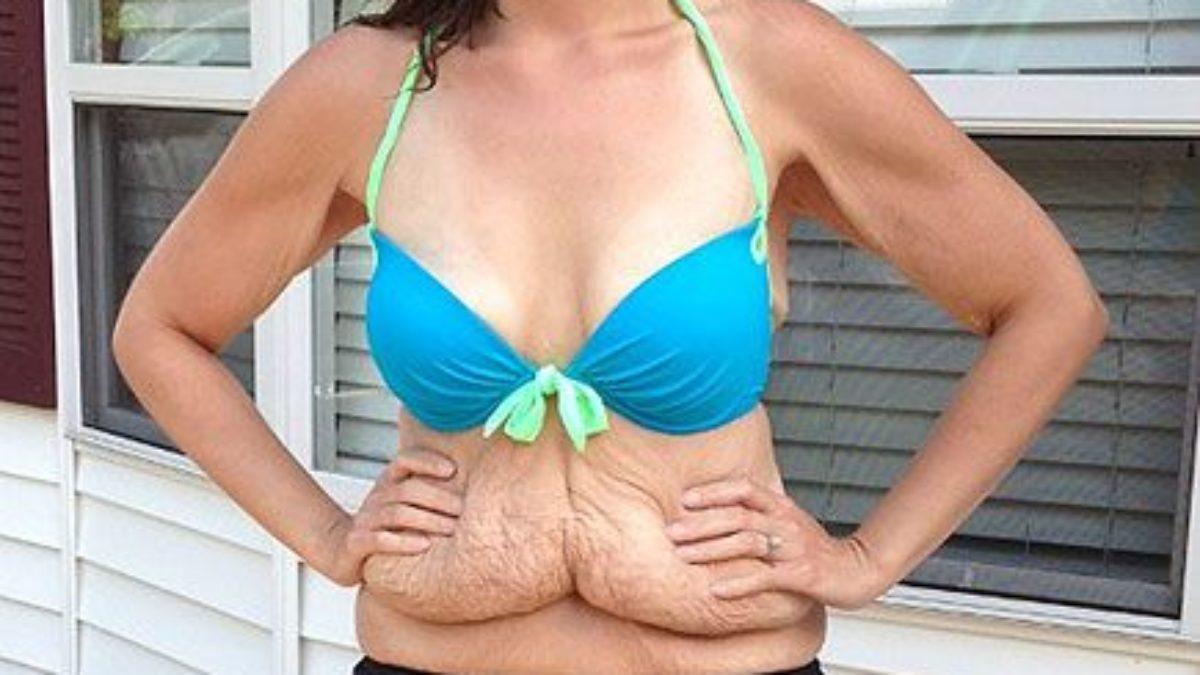casi di successo di perdita di peso